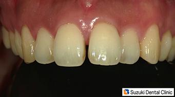 前歯のすき間を治す