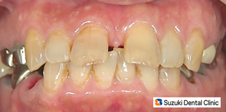 年齢と共に前歯が出る、開く