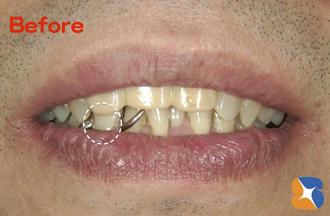 金具が目立つ入れ歯