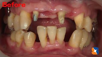 抜歯を最低限に抑えて出来るだけ歯を残した