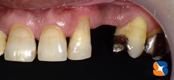 犬歯 欠損 入れ歯と分からない入れ歯