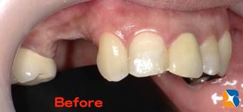 インプラント摘出後の歯茎