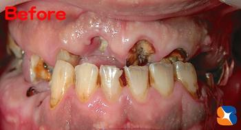 虫歯で歯がモロモロ