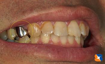 2年前までは保険で銀歯