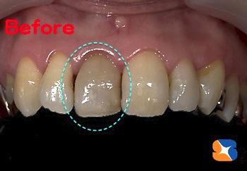 神経のない前歯は変色する