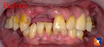 前歯に目立たない保険の入れ歯