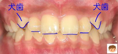 八重歯を治す