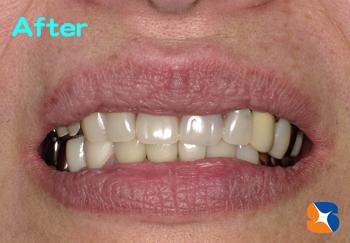 目立たない入れ歯を保険で丁寧に作る