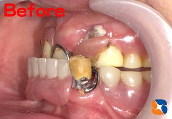 保険でよく噛める入れ歯の相談