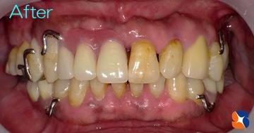 保険の入れ歯なのにデザインは自費の入れ歯
