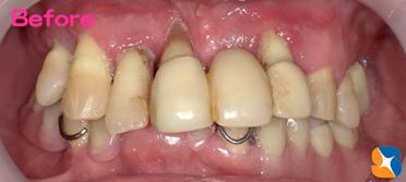 グラつく前歯の抜歯と見た感じの良い入れ歯を希望