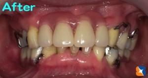 渾身の力で作った力作の入れ歯