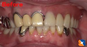 噛めない入れ歯 見た目の悪い入れ歯