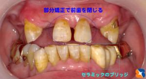 残せる歯は懸命に残す