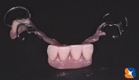 見た目を重視した凝った保険の入れ歯