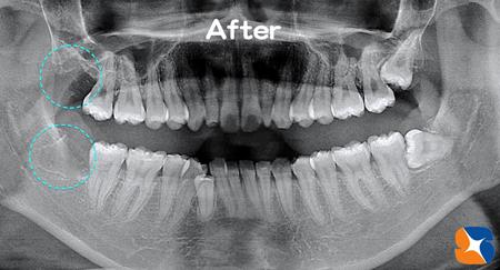 一日に2本埋もれた親知らずの抜歯を行う