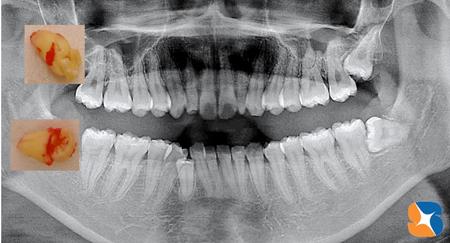 全く恐くない親知らずの抜歯方法