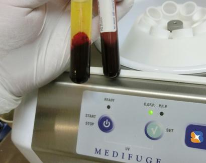 採血した血液を遠心分離機にかけて傷口を促進するための成分を抽出