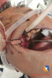 骨の少ない部分に人工骨を入れて厚みを増す