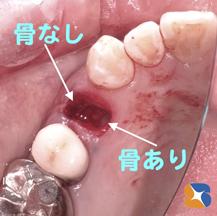 インプラントを前提に抜歯