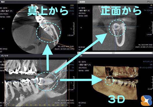 CTを使って細かく分析