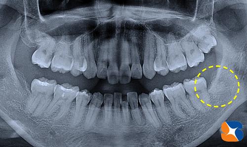 横向きの親知らずを静脈麻酔鎮静法で抜歯