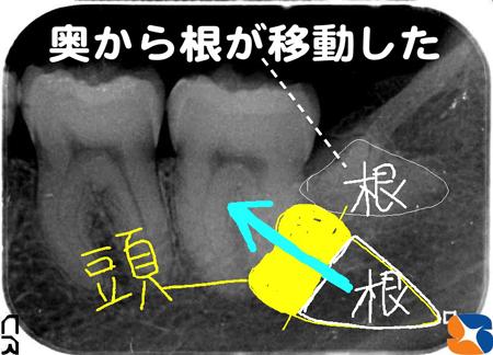難し過ぎる親知らずの抜歯を静脈麻酔鎮静法で抜歯する