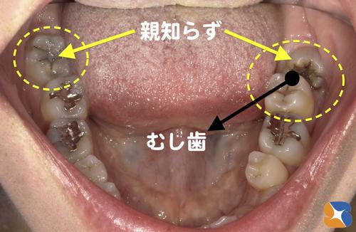 斜め傾く親知らずの横の歯の虫歯 保険で鎮静法