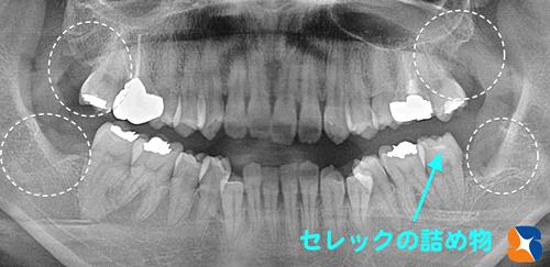 奈良&大阪 保険の点滴 無痛抜歯 無痛むし歯治療