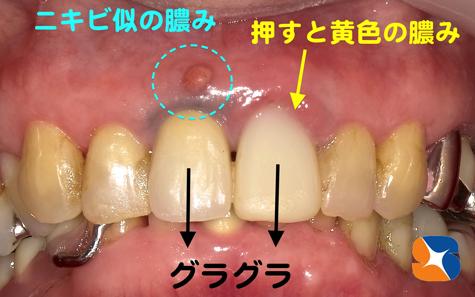 歯茎にニキビ 抜歯即インプラント