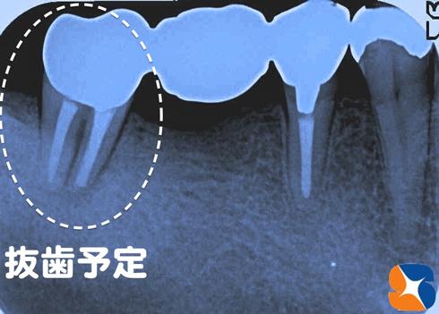 歯の根が割れている 抜歯した日にインプラントの手術