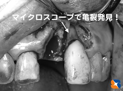 マイクロスコープで歯のヒビを発見