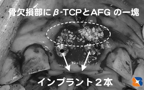 CGF  AFG  麻酔鎮静法 細胞培養認定医院 痛くない恐くないインプラント