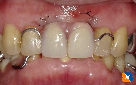 一生入れ歯なしの人生 インプラント 大阪 麻酔鎮静法