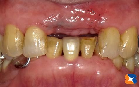 驚異的な歯肉の回復力 CGF 無痛インプラント