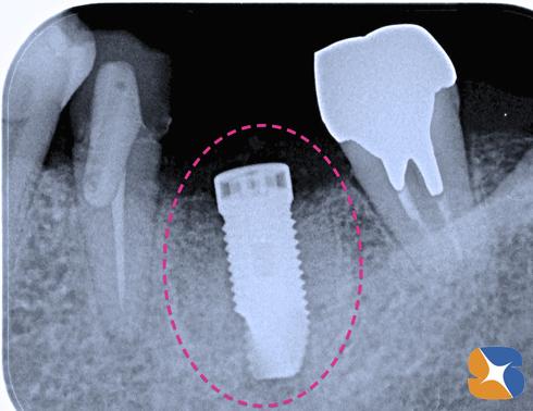 抜歯した日に新しい歯が生まれる