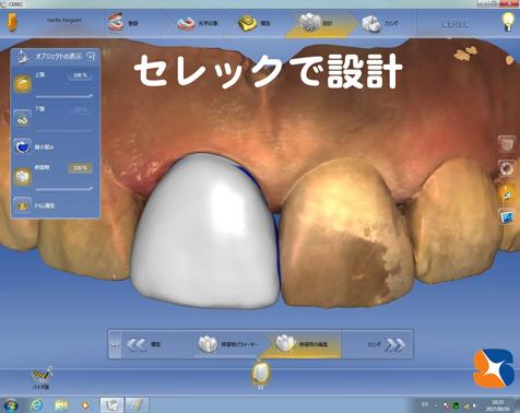 東大阪 奈良 生駒 歯科 セラミック きっちり 丁寧 完璧 低価格 50,000〜