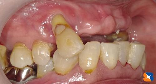 外れる入れ歯から何でも噛める固定の歯へ