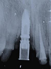 歯を抜いた日に骨を増強させてからインプラントを移植