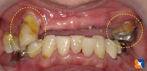 歯を抜いた日に歯を移植する