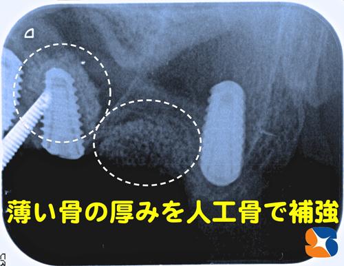 骨の厚みの薄い所に人工的に骨を作る