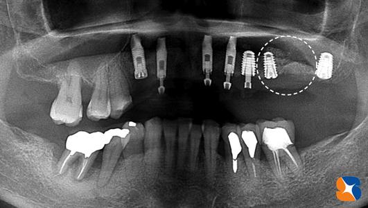 最新方法のインプラント手術 再生療法
