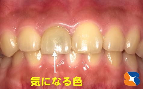 オールセラミックの前歯の差し歯