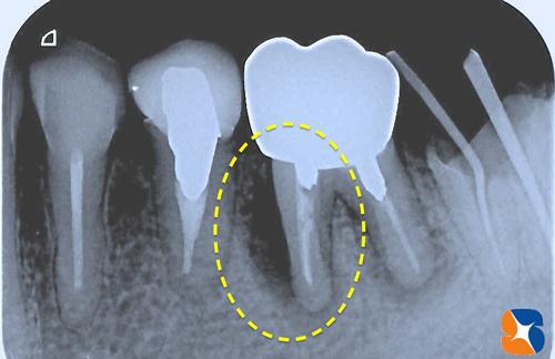 奥歯に大きな膿みの袋 抜歯を宣告