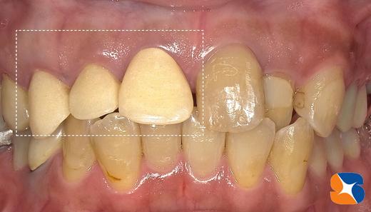 前歯のセラミック ブリッジ 矯正