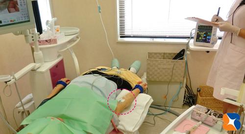 静脈麻酔鎮静法で恐さを消失リラックス作用