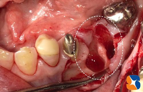 一日で抜歯+インプラント植立+骨の強化