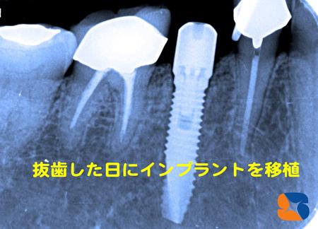抜歯を行った日にインプラントを植立