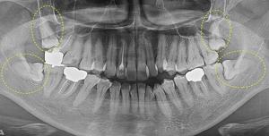 恐くない点滴麻酔鎮静法 抜歯 自家血小板含有フィブリンゲル CGF 特定細胞加工物