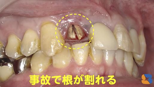 神経のない前の差し歯は割れやすい